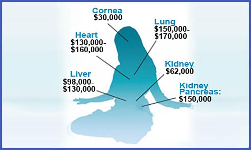 Chi phí cấy ghép các nội tạng quan trọng lên đến hơn trăm ngàn USD, tương đương hàng tỷ đồng Việt Nam.